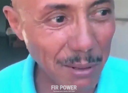 Íon Balls faz surgir cabelos em careca